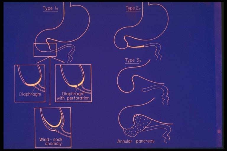 Duodenal atresia     diagram    shows various types