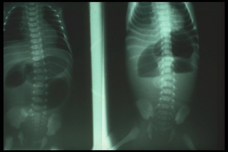 Jejunal atresia x ray